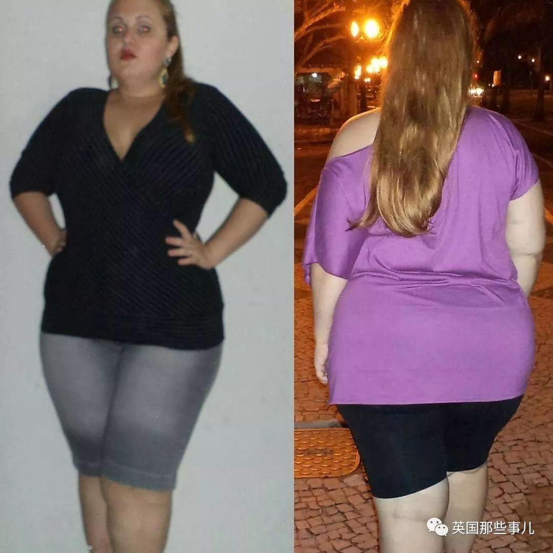 4年減肥脫胎換骨,然而想減成這樣,哪有光縮胃那麼簡單!
